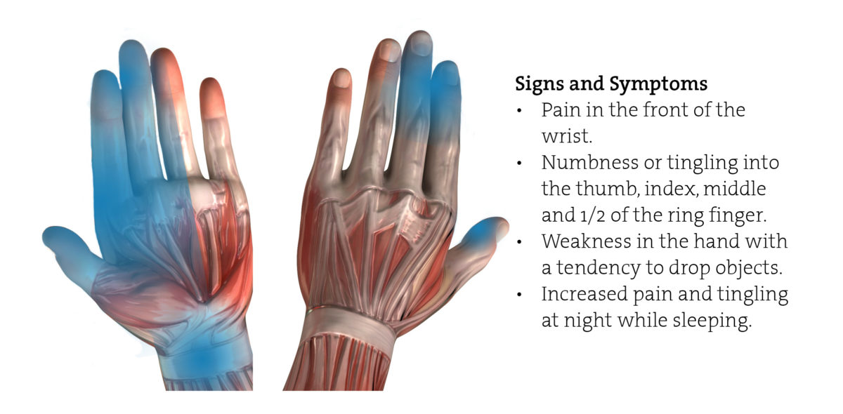 Carpal Tunnel Syndrome Rehabilitation Program Climbing